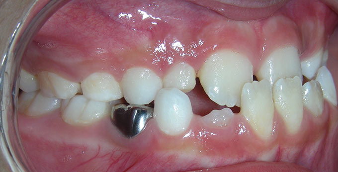 Child's teeth, right side view before orthodontic treatment for an underbite (Negative overjet)